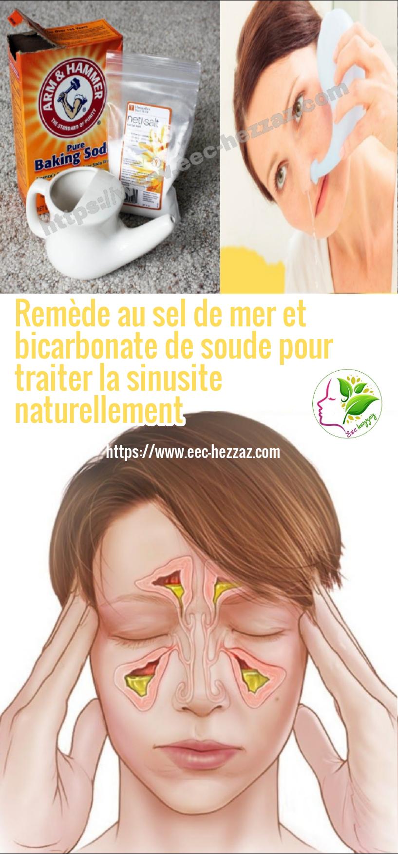 Remède au sel de mer et bicarbonate de soude pour traiter la sinusite naturellement