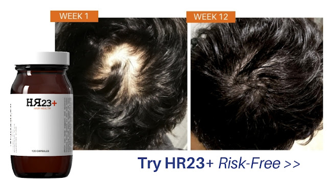 hr23+ hair loss