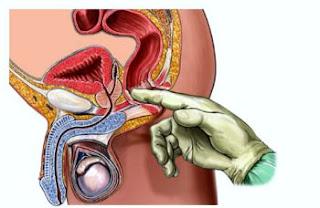 Cara obati wasir yang parah tanpa harus operasi