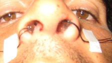This type of surgery unlocks your nasal airways so that the airflow can be improved. Septoplasty makes straight a deviated or bent nasal septum. It divides the two sides of your nose, whereas, the turbinate reduction removes or reduces the arched shapes that protrude at the side of your nose.