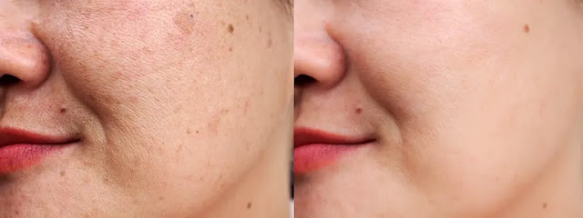 What causes dark spots and Patches on the face?