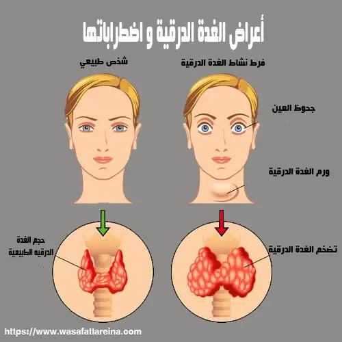 اسباب الغدة الدرقية الخاملة والنشطة واهم اعراضها