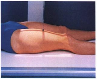 AP PROJECTION: FEMUR - MID AND DISTAL - RadTechOnDutyXray Femur Positioning
