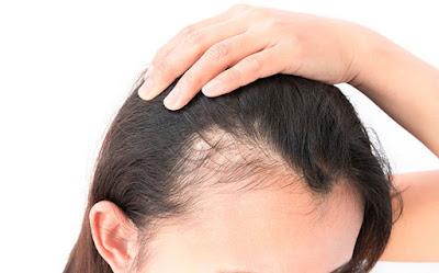 Dermatologistas e tricologistas podem economizar o dinheiro dos pacientes e limitar a perda permanente de cabelo por meio de um diagnóstico médico