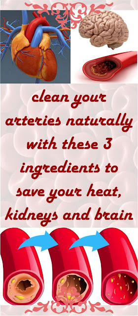 IT IS THE MOST POWERFUL ANTIOXIDANT AND IT'LL CLEANSE YOUR ARTERIES FROM LDL CHOLESTEROL