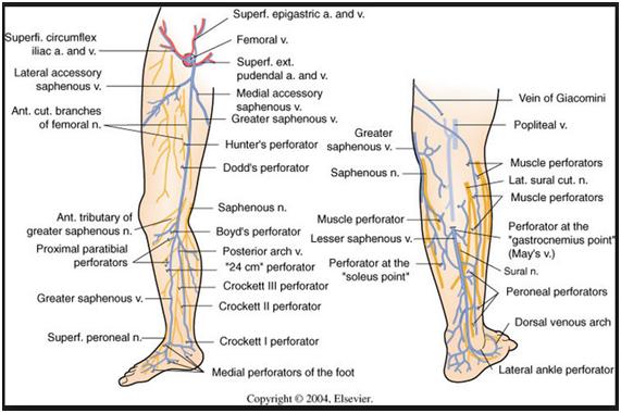 Ascendente perna superficiais tromboflebite veias da