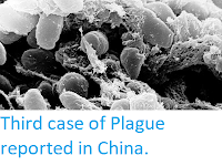 https://sciencythoughts.blogspot.com/2019/11/third-case-of-plague-reported-in-china.html