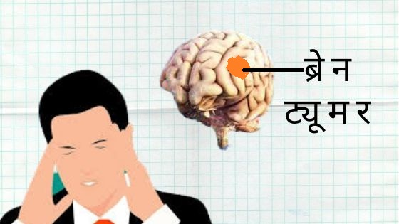 ब्रेन ट्यूमर की लास्ट स्टेज, लक्षण व इलाज -  brain tumour in hindi