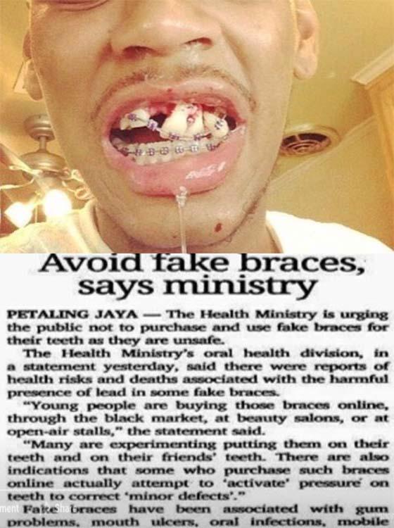 Surat Terbuka Untuk PPIM Isu Bela Doktor Gigi Palsu
