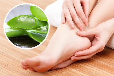 aloe-vera gel can get rid of cracked feet