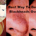 Best Way To Get Rid Of Blackheads Overnight !