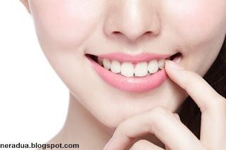 Cara Mudah Menghilangkan Karang Gigi Neradua Website Sumber