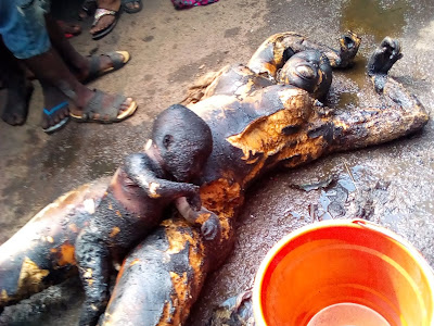 Mother and Child Burnt After The Fire Incident in Onitsha, Anambra State. PHOTOS