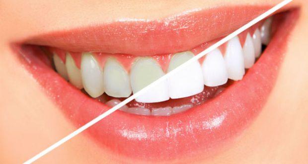 Clareamento Dental Caseiro – 6 Mais Famosos Tipos e Cuidados Leia mais https://www.mundoboaforma.com.br/clareamento-dental-caseiro-6-mais-famosos-tipos-e-cuidados/#4CqfmOEbm7dps5dk.99