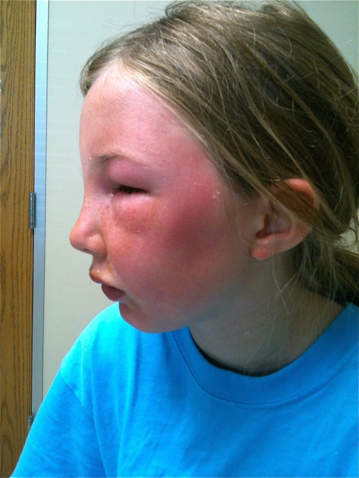 Natural Treatment For Face Sunburn