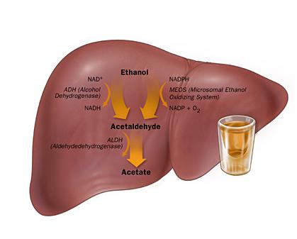 Alcoholic liver disease is often silent until complications develop