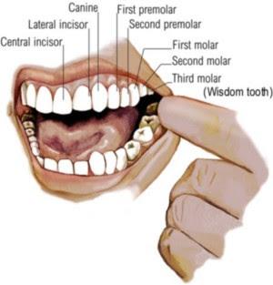 Menyembuhkan Sakit Gigi Secara Tradisional Belajar Itu Mudah