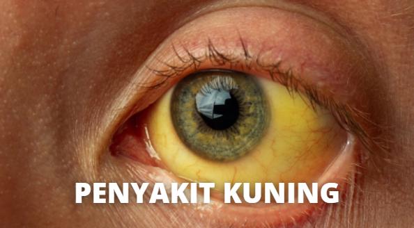 Penyakit Kuning : Pengertian, Tanda dan Gejala, Penyebab, Faktor Risiko Pada Tubuh Manusia Pengertian Penyakit Kuning Penyakit kuning, bisa juga dikatakan dengan jaundice atau ikterus, adalah keadaan kulit dan bagian putih mata manjadi berwarna kuning yang disebabkan karena tingginya kadar bilirubin. Bilirubin dibentuk dari pemecahan sel darah merah.   Tubuh biasanya mengeluarkan bilirubin melalui hati. Karena hati pada bayi baru lahir belum matang (imatur), terkadang bilirubin menumpuk lebih cepat dari pada kemampuan tubuh mengeluarkannya, sehingga menyebabkan terjadinya penyakit kuning.  Tanda dan Gejela Penyakit Kuning Gejala yang paling terjadi yaitu kulit dan sklera mata berwarna kuning. Gejal lainnya yaitu mengantuk dan tidak dapat makan dengan baik dapat terjadi dengan kadar biliburin yang sangat tinggi.  Gejala lainnya dapat berupa : Bagian dalam mulut berwarna kuning Urin berwarna gelap atau coklat Tinja berwarna pucat Catatan : jika putih mata tidak kuning, mungkin bukan terkena penyakit kuning. Kulit dapat berubah menjadi kuning-oranye jika mengonsumsi beta karoten berlebih, pigmen oranye pada wortel.  Gejala lainnya biasanya tergantung penyakit yang menyebabkan penyakit kuning tersebut : Kanker dapat tidak bergejala atau bergejala lemas, penurunan berat badan, atau gejala lain Hepatitis dapat menyebabkan mual, muntah, lemas, atau gejala lain  Penyebab Penyakit Kuning Substansi yang disebut dengan bilirubin dapat menumpuk di darah. Bilirubin dibentuk dari pemecahan sel darah merah. Biasanya tubuh mengeluarkan bilirubin melalui hati.   Karena hari bayi baru lahir belum matang (immature), terkadang bilirubin menumpuk lebih cepat daripada kemampuan tubuh mengeluarkannya, sehingga menyebabkan terjadinya penyakit kuning. Kadar bilirubin yang sangat tinggi dapat merusak sistem saraf bayi.   Kondisi ini disebut juga kernicterus. Bayi prematur lebih berisiko terkena penyakit kuning dibanding bayi cukup bulan.  Penyebab lain yaitu infeksi, masalah golongan darah a