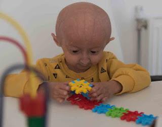 الشيخوخة المبكرة، الامراض الوراثية فى الانسان