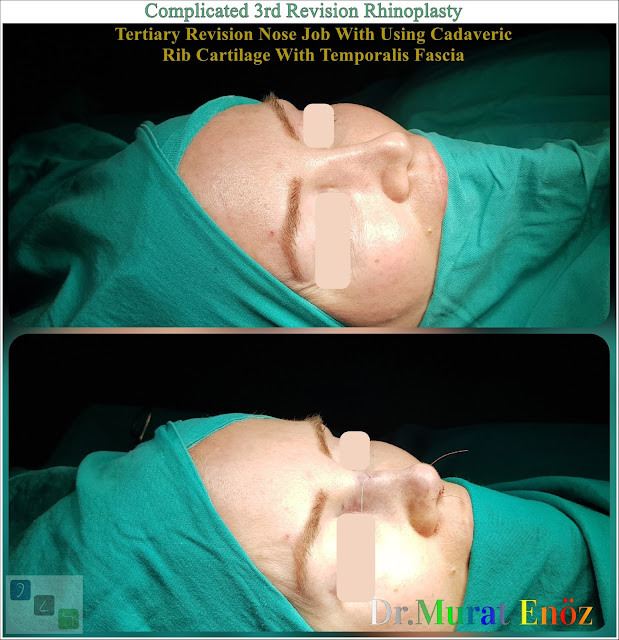 Complicated 3rd Revision Rhinoplasty - Tertiary Revision Nose Job With Using Cadaveric Rib Cartilage With Temporalis Fascia