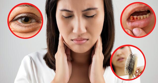 Chảy máu mắt, răng, rụng tóc là một trong những dấu hiệu bạn đang thiếu vitamin