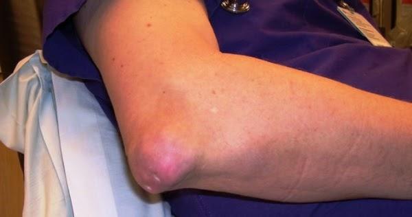 Apa itu arthritis?
