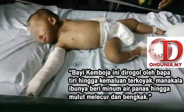 Bapa Tiri Rogol Bayi, Ibu Pula Beri Minum Air Panas Supaya Berhenti Menangis