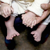 Bayi Jari 16 Jari Kaki dan 15 Jari Pada Tangan, Telah Lahir Sangat Sehat