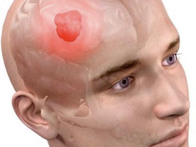 Gejala-Gejala Penyakit Kanker Otak