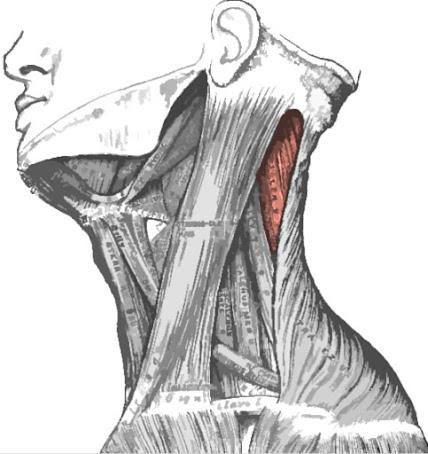 Músculo esplenio capitis resaltado de color rojo