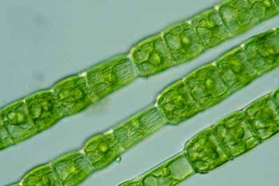Protista mirip tumbuhan Chlorophyta (ganggang/alga hijau): Oedogonium sp.
