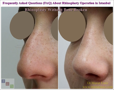 Frequently Asked Questions About Rhinoplasty Operation in Istanbul, Turkey- Rhinoplasty Surgery FAQ - FAQ About Nose Job in Istanbul - Frequently Asked Questions in Rhinoplasty - Recovery Time for Rhinoplasty Operation - Cost Of Septoplasty Operation in İstanbul, Turkey - Health Benefits of Rhinoplasty Operation - Pre- and post-operative Images of the Rhinoplasty - Rhinoplasty Operation Time​ ​- Nose Job in Istanbul - Rhinoplasty in Istanbul