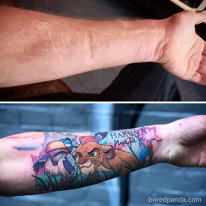 30 Times Tattoo Artists Did An Awesome Job Covering Up People's Scars And Birthmarks