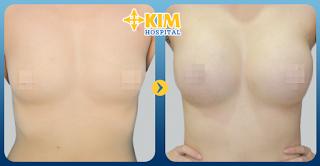 Nâng ngực nội soi được thực hiện với đường rạch mổ bên trong nên rất an toàn.