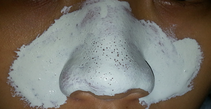 Get Rid Of Blackheads With This Two-ingredient Mask