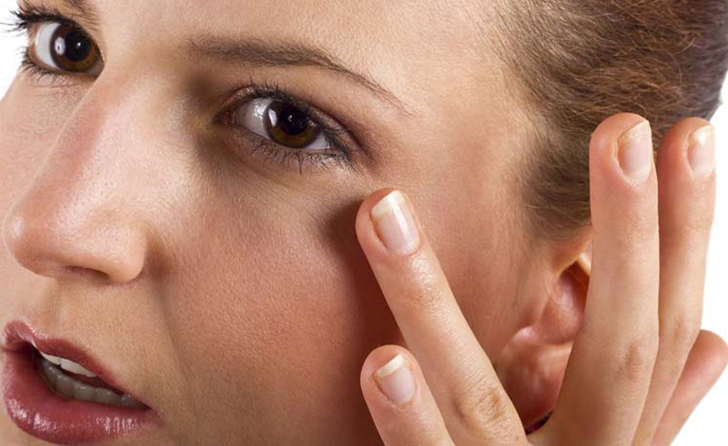 12 Surefire Tricks to Reduce Puffy Eyes