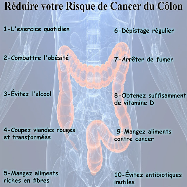 10 Façons de réduire votre risque de cancer du côlon
