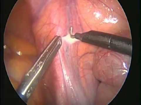 علاج دوالي الخصية جراحيا