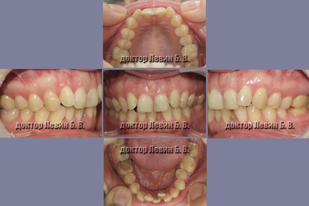 Фотография зубов пациента со скученным положением зубов