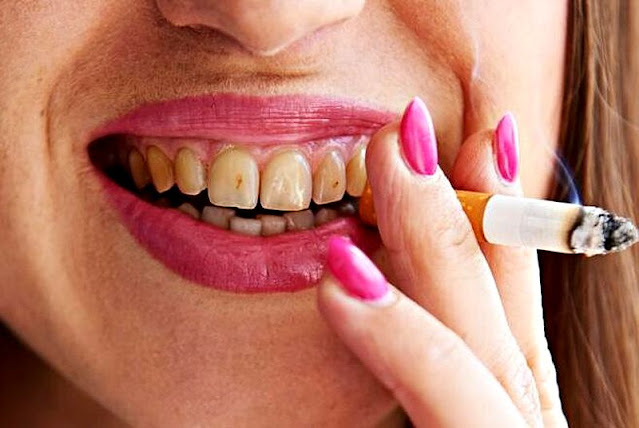 PDF: The staining effect of cigarette smoke on different dental materials