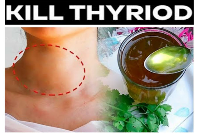 Hypothyroidism: Causes, Symptoms, Treatment, Diet & More | 6 Easy Steps to Your Thyroid Naturally