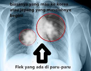cara untuk menutupi flek di paru-paru saat MCU