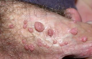 macam macam penyakit kelamin pada laki-laki dan ciri cirinya