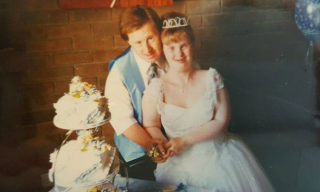 """People Treat Them As """"Disgusting"""", Discover This Couple Of Down's Syndrome Who Has Just Celebrated His 23rd Wedding Anniversary"""