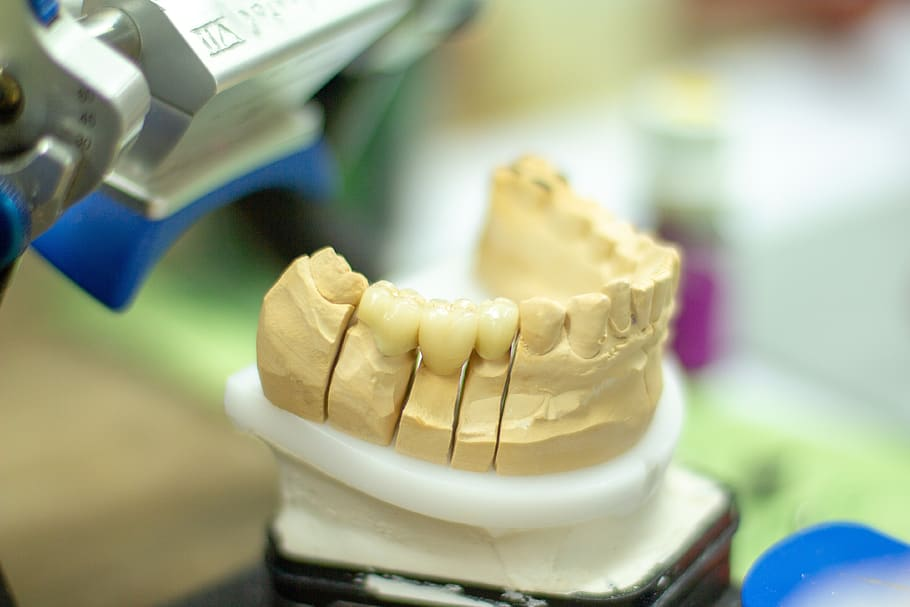 What Are Endodontics?
