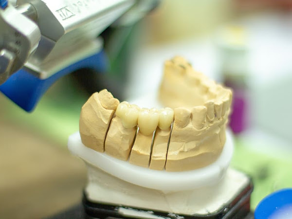 What Are Endodontics?