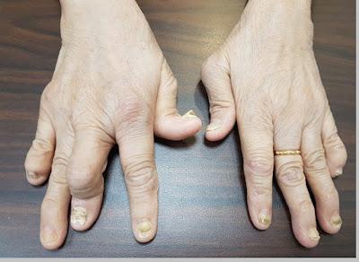Artritis (kerusakan tulang rawan sendi) - berbagaireviews.com