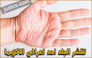 جميع الامراض الجلدية بالصور