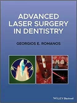Download Advanced Laser Surgery in Dentistry PDF