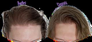 Resultado Shampoo em Barra Vegano - Lola (antes e depois) - Resenha Completa
